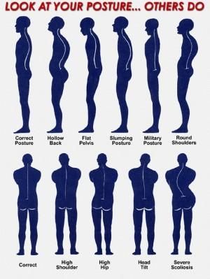 Posture Bad