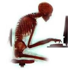 Poor posture contributes to Arthritis